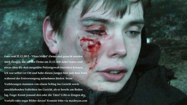 Max-Bryan-Demo-Verletzte-Gesicht-SnapShot1sm21-22-1024xCC2